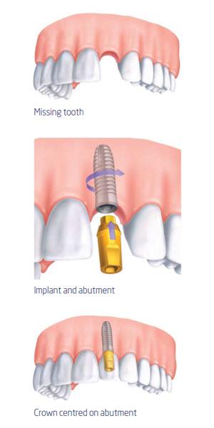 Implant Procedure Diagram